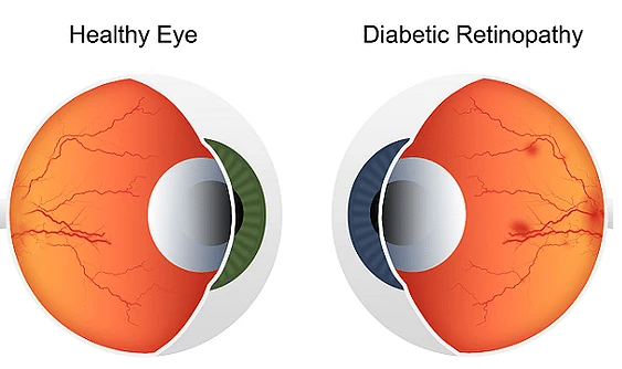 Opticians can indeed detect diabetes