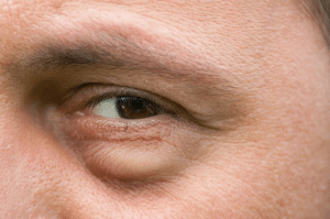 eye is swelled up top 4 causes